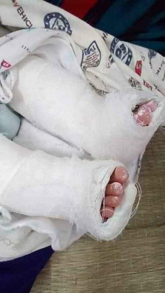 Tiếng khóc xé lòng của bé 8 tháng tuổi bị bệnh tật bủa vây - 2
