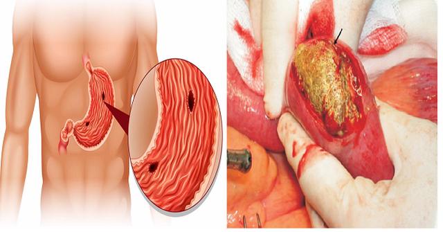 Khang Vị An - Hỗ trợ giảm nguy cơ biến chứng bệnh đau dạ dày - 3