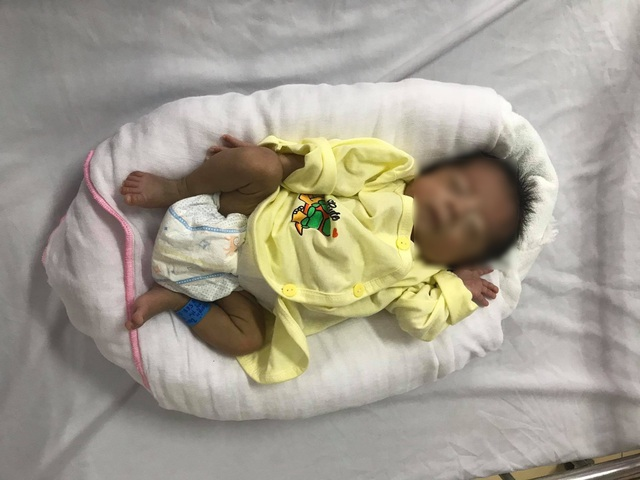 Cứu sống bé sinh non 28 tuần tuổi bị hoại tử dạ dày hiếm gặp - 1