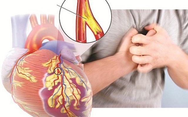 Mỹ cấp phép sử dụng thuốc tiểu đường trong điều trị suy tim - 1