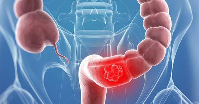 Bác sĩ cảnh báo 5 kiểu người có nguy cơ mắc ung thư đại tràng rất cao - 3