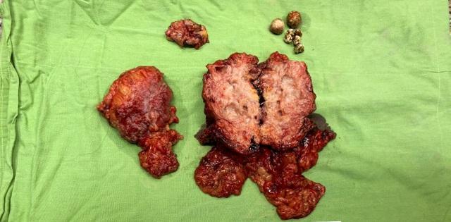 Bác sĩ phẫu thuật cùng lúc 6 cơ quan để cứu bệnh nhân bị ung thư túi mật - 1