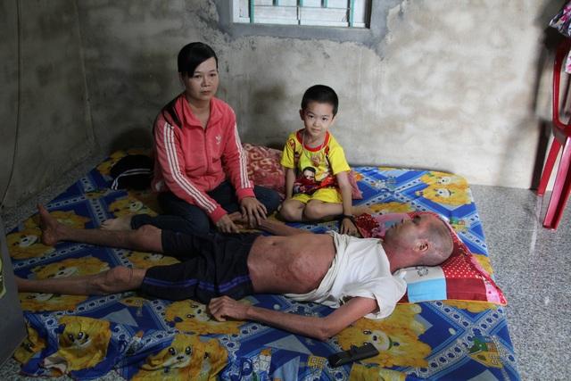 Nỗi khổ đau chồng chất của người đàn ông không dám cựa mình vì da nứt toác - 3