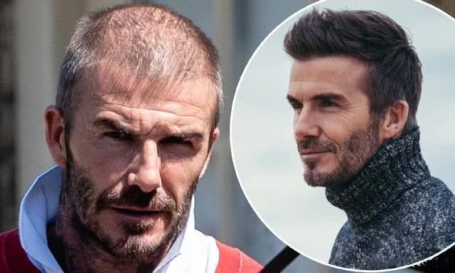 David Beckham đối mặt với chứng rụng tóc và tuổi tác - 1
