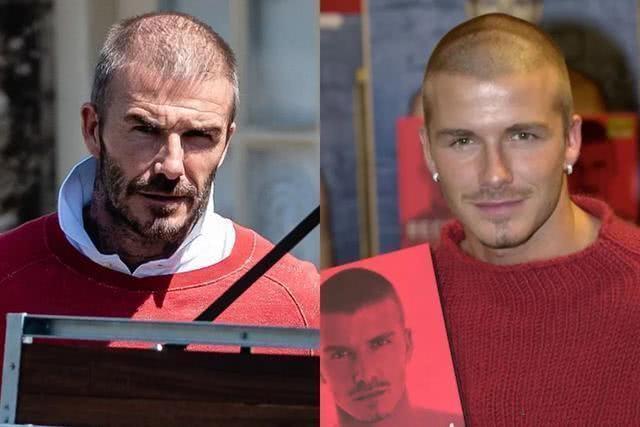 David Beckham đối mặt với chứng rụng tóc và tuổi tác - 5