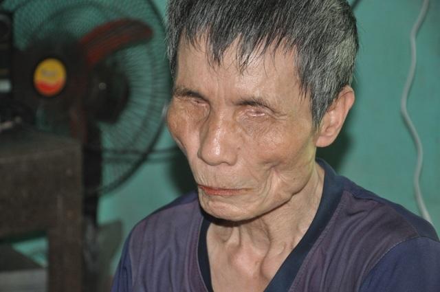 Người đàn ông mù chăm em gái tâm thần xin dừng hỗ trợ - 1