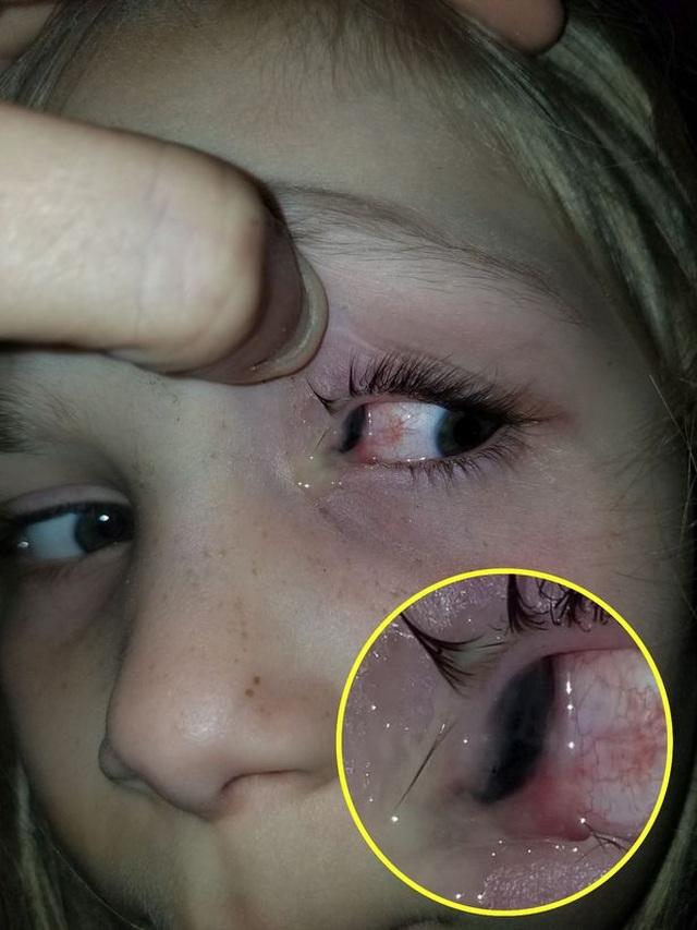 Bọ lớn chui vào tuyến lệ của bé gái 6 tuổi - 2