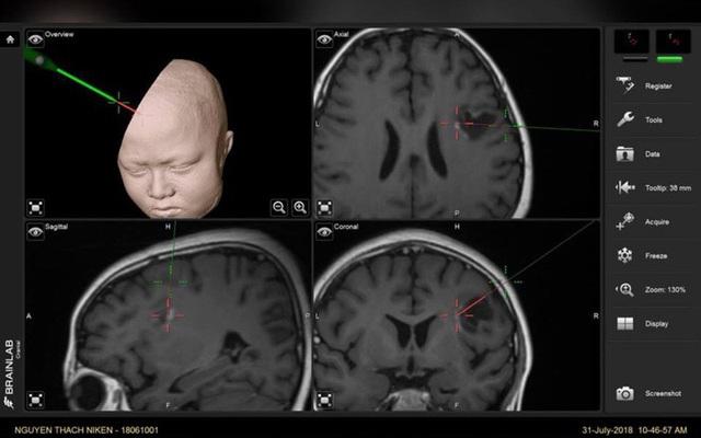 U não ở trẻ em: 70% là ác tính, dấu hiệu nào cảnh báo nguy cơ? - 1