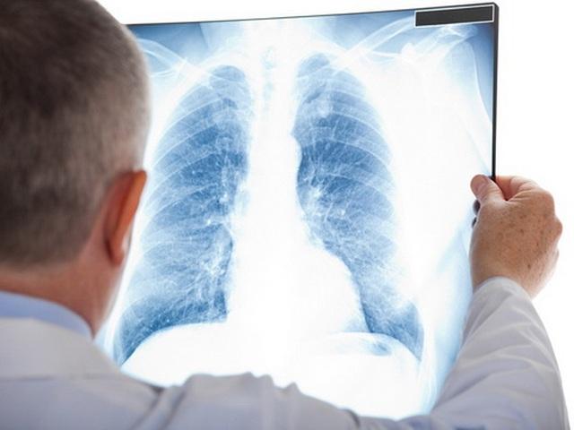 Các dấu hiệu nhận biết ung thư phổi ngoài biểu hiện ho - 2