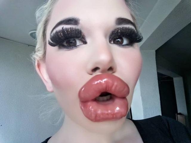 Cô gái có đôi môi trề nhất thế giới sau 20 lần phẫu thuật - 2