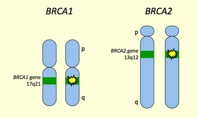 Hai loại ung thư phụ nữ thường gặp - 3