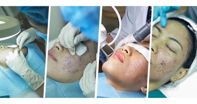 Phát hiện lý thú tại phòng khám chuyên điều trị sẹo rỗ hot nhất Sài Gòn - Phòng khám da liễu Doctor Scar - 3