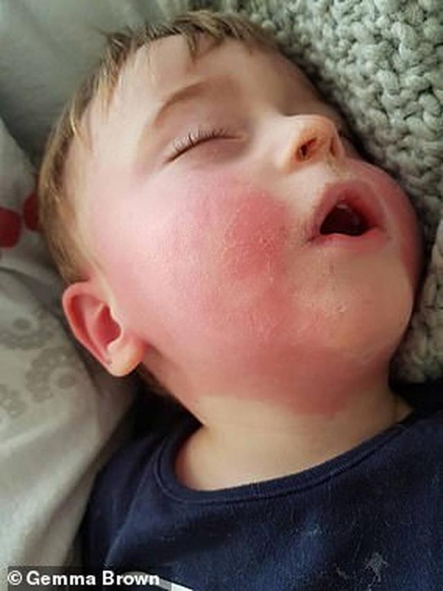 Anh: Trẻ mắc căn bệnh bí ẩn liên quan đến Covid-19 đều không có bệnh lý nền - 1