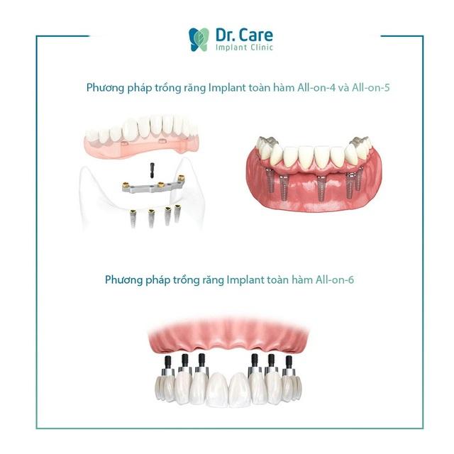Loại bỏ nỗi lo chi phí với phương pháp trồng răng Implant toàn hàm tiết kiệm - 1