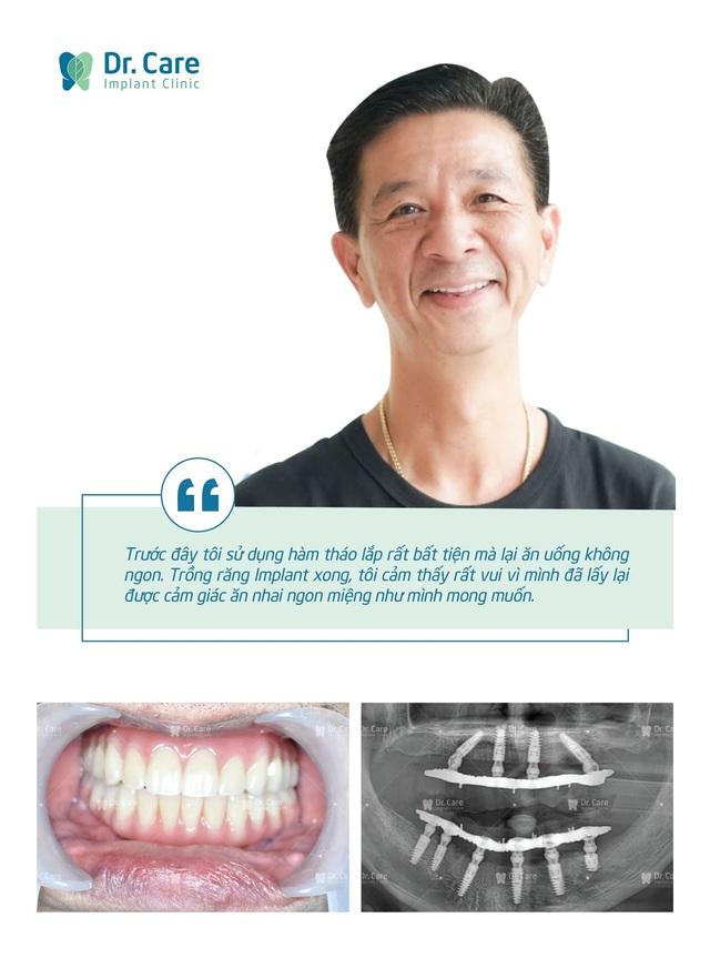 Loại bỏ nỗi lo chi phí với phương pháp trồng răng Implant toàn hàm tiết kiệm - 2