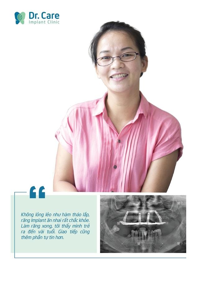 Loại bỏ nỗi lo chi phí với phương pháp trồng răng Implant toàn hàm tiết kiệm - 3