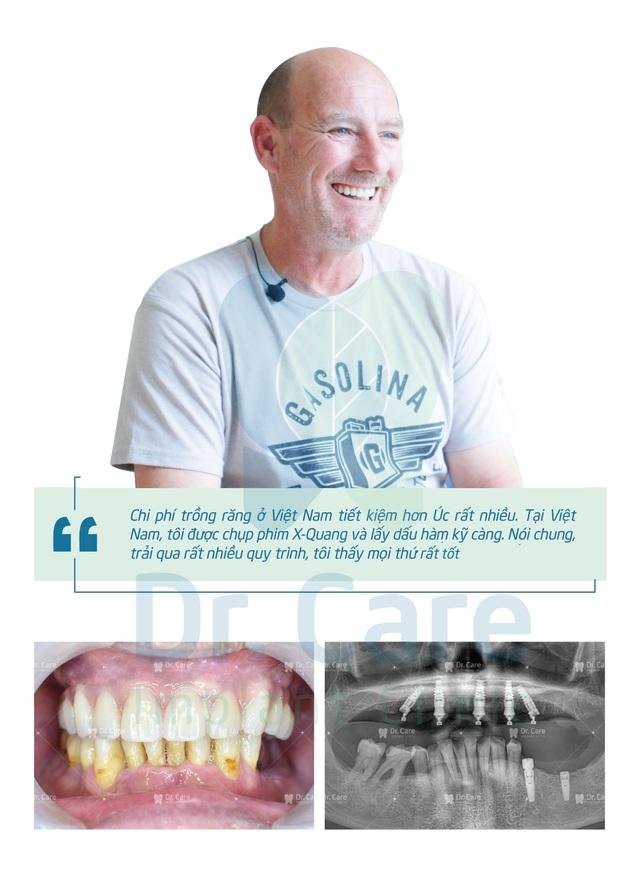 Loại bỏ nỗi lo chi phí với phương pháp trồng răng Implant toàn hàm tiết kiệm - 4