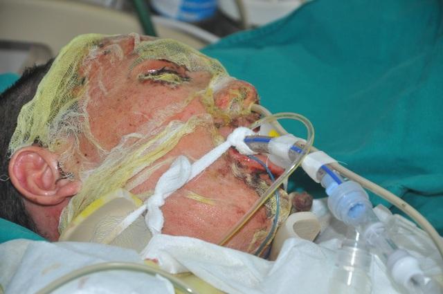 Bác sĩ kêu gọi khẩn cấp cứu tính mạng chàng trai dị ứng người đỏ rực - 1