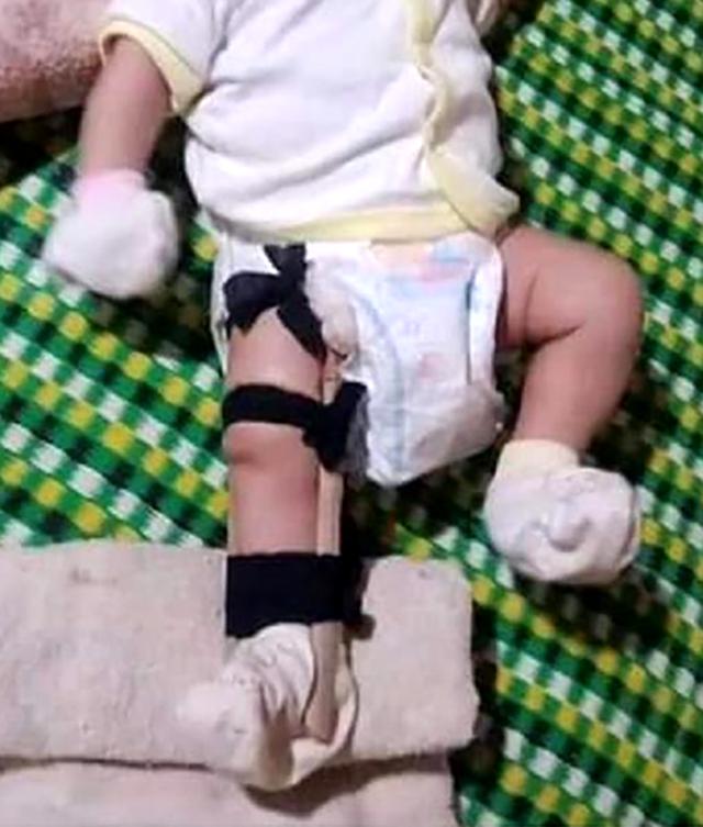 Bé 2 tháng tuổi bị cha ruột sơ ý dẫm gãy chân? - 1