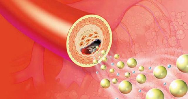 Lipidcleanz - Giải pháp giúp hỗ trợ kiểm soát rối loạn lipid máu - 1