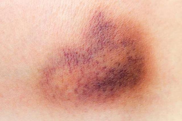 9 dấu hiệu ung thư máu dễ bị bỏ qua - 1