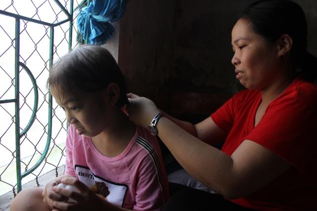 Rớt nước mắt nhìn cô bé tóc rụng từng nắm sau những lần xạ trị - 4