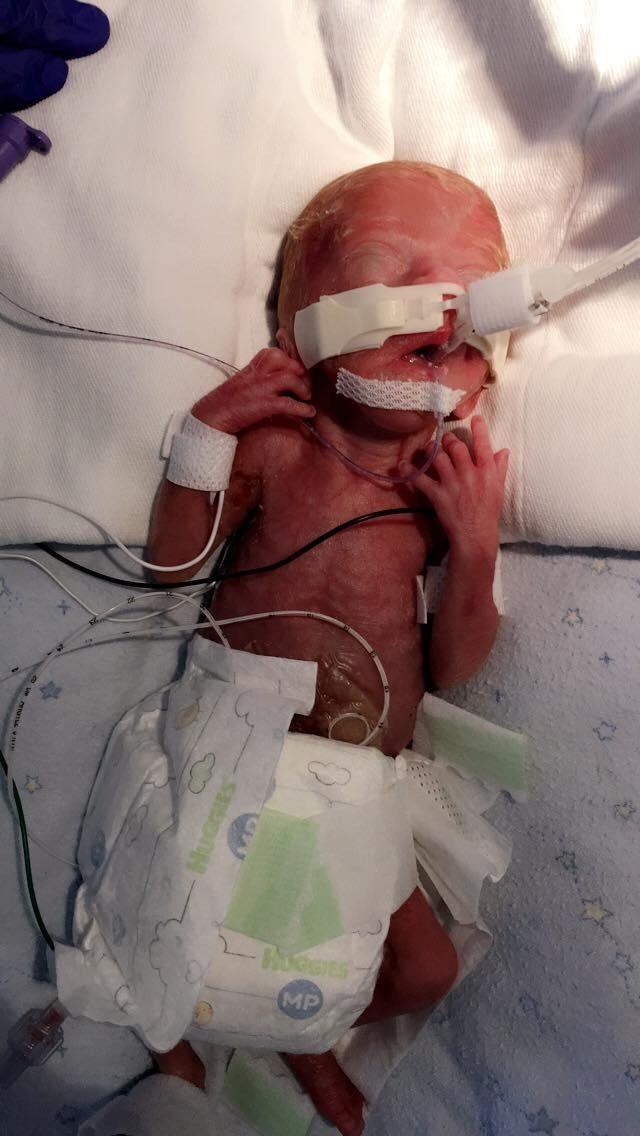 Những tấm hình đáng kinh ngạc của em bé sinh non sống sót thần kỳ - Ảnh minh hoạ 2