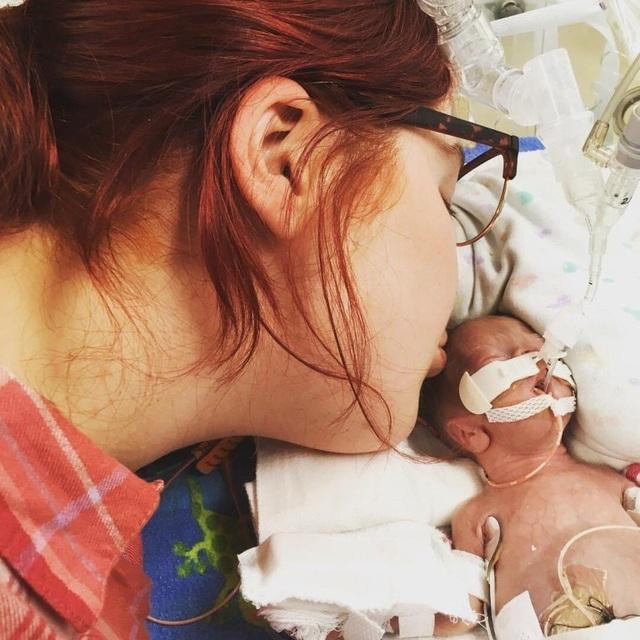 Những tấm hình đáng kinh ngạc của em bé sinh non sống sót thần kỳ - Ảnh minh hoạ 3