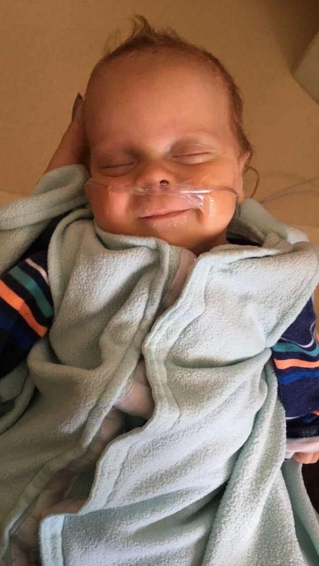 Những tấm hình đáng kinh ngạc của em bé sinh non sống sót thần kỳ - 4