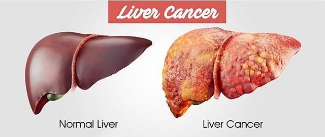 Điều trị ung thư gan bằng cách nhắm vào...tế bào khỏe mạnh - 2