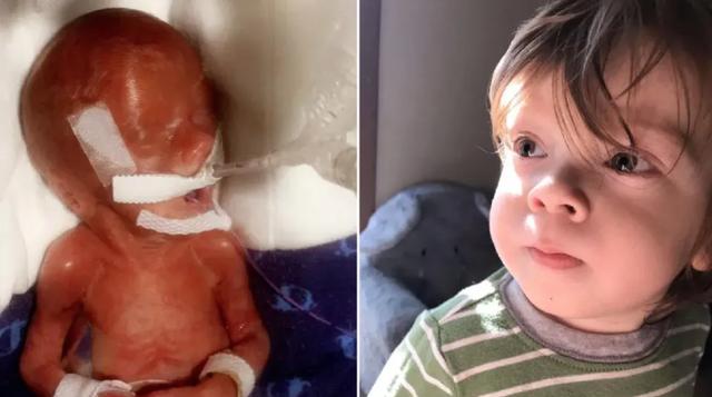 Những tấm hình đáng kinh ngạc của em bé sinh non sống sót thần kỳ