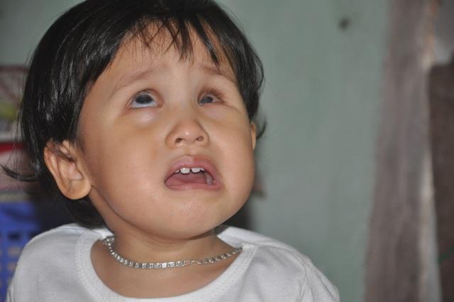 Thương bé gái khi sinh ra đã bị hỏng đôi mắt - 1