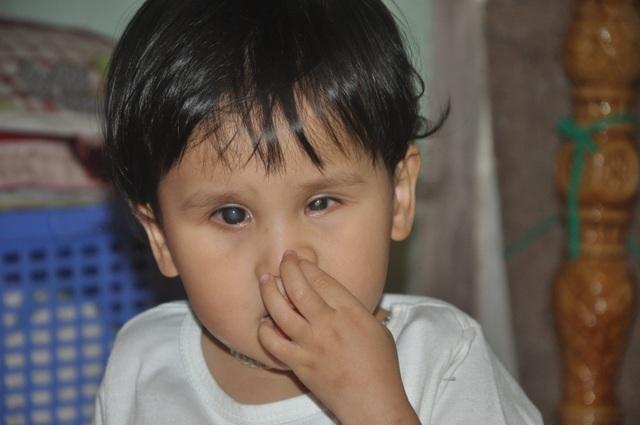 Thương bé gái khi sinh ra đã bị hỏng đôi mắt - 6