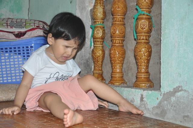 Thương bé gái khi sinh ra đã bị hỏng đôi mắt - 5