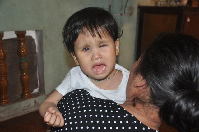 Thương bé gái khi sinh ra đã bị hỏng đôi mắt - 2