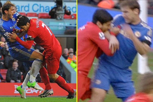 """""""Nghiện"""" cắn người, Luis Suarez vẫn được """"nạn nhân"""" ngưỡng mộ - 2"""