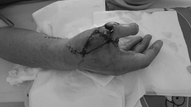 Cắt ngón chân lên thay ngón tay cái bị cưa cắt cụt - 2