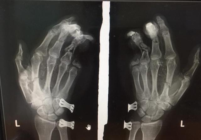 Điện thoại phát nổ khi đang sạc pin, thanh niên bị dập nát bàn tay - 1