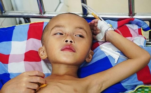 Nhói lòng nhìn cậu bé 5 tuổi sưng tấy tinh hoàn yếu ớt cầu xin sự sống - 1
