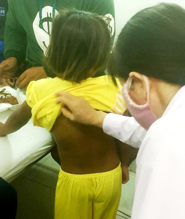 Nhiều người đến bệnh viện thăm bé gái 6 tuổi bị cha bạo hành - 2