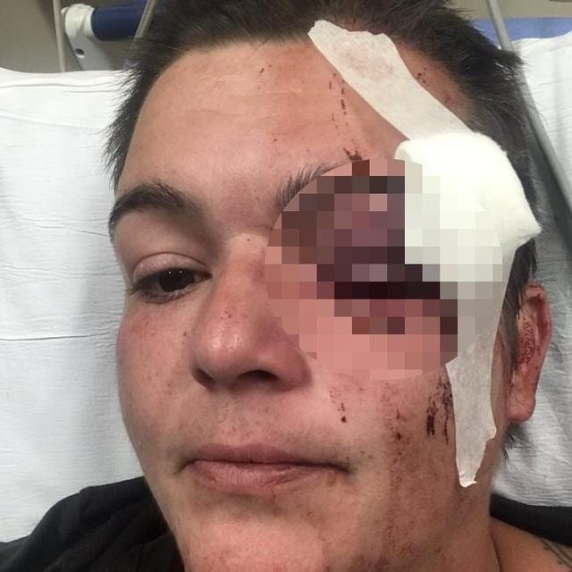 Nữ phóng viên Mỹ bị bắn mù mắt khi đưa tin biểu tình, một người bị bắn chết - 1