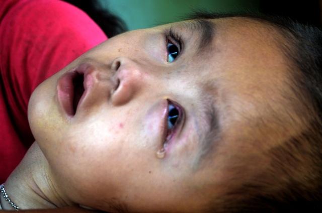 Thương cảnh mẹ nghèo ôm con bị bệnh não úng thuỷ xin ăn từng bữa - 2