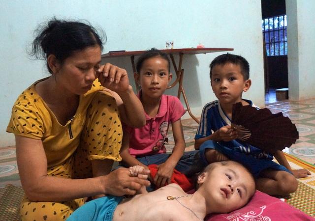 Thương cảnh mẹ nghèo ôm con bị bệnh não úng thuỷ xin ăn từng bữa - 3