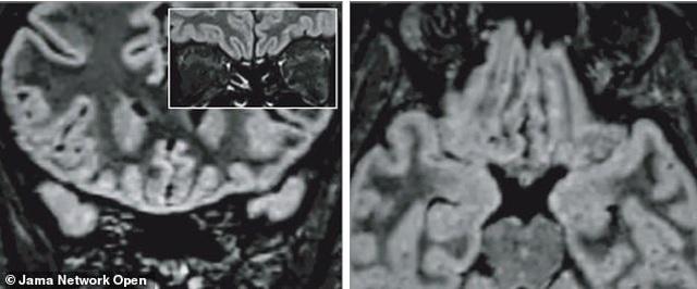 Virus corona thay đổi não của bệnh nhân như thế nào? - 2