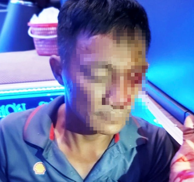 Lời kể của phụ xe khách bị chĩa súng, bắn vào mặt  - 1