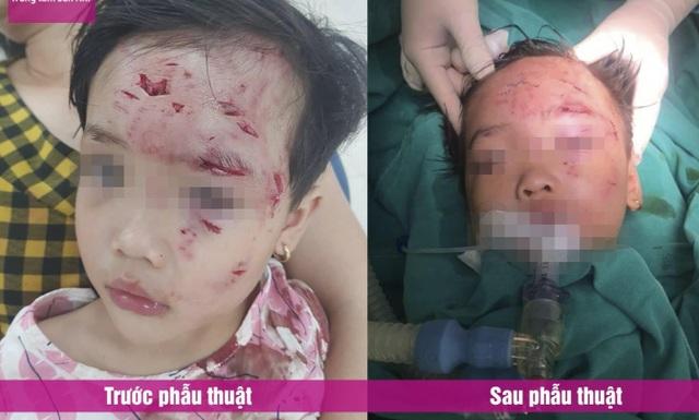 Chó nhà hàng xóm tấn công, bé gái 3 tuổi chấn thương phức tạp vùng hàm mặt