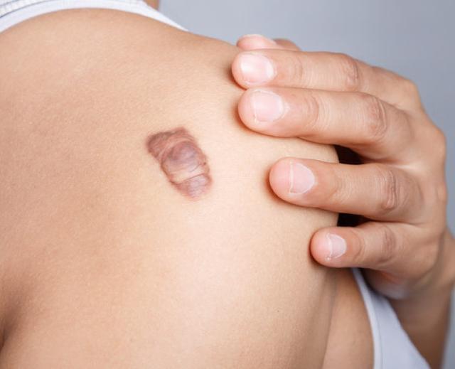 Tia UV cường độ cao từ ánh nắng gây ung thư da như thế nào? - 3