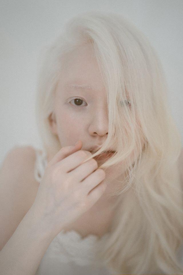 Nữ sinh bạch tạng sở hữu vẻ đẹp như nàng công chúa tuyết - 1