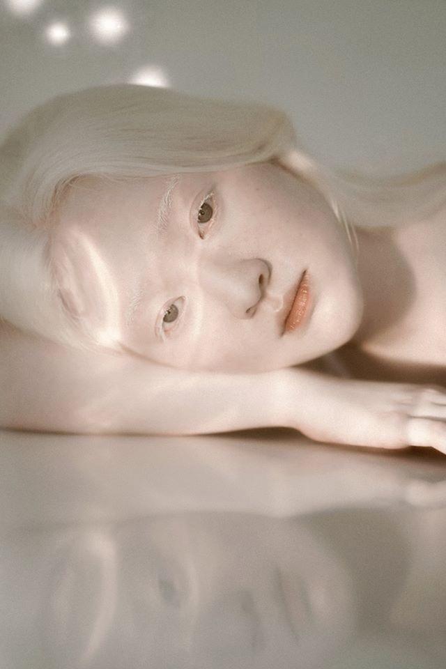 Nữ sinh bạch tạng sở hữu vẻ đẹp như nàng công chúa tuyết - 3