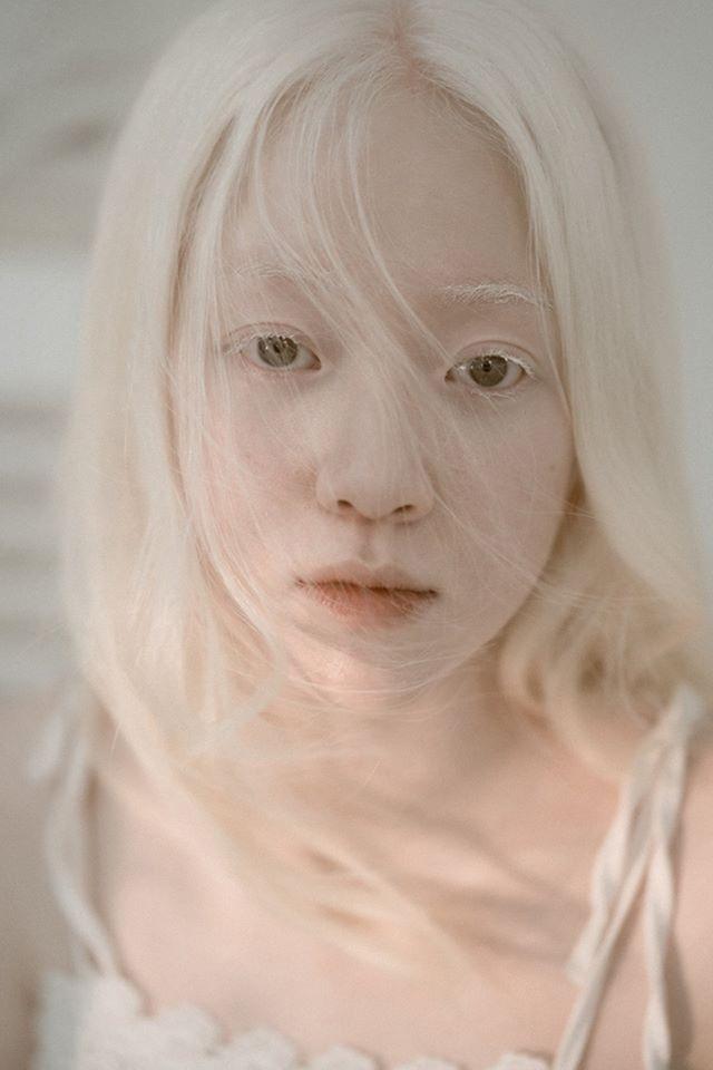 Nữ sinh bạch tạng sở hữu vẻ đẹp như nàng công chúa tuyết - 4